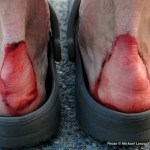 8 Pro Tips For Preventing Blisters When Hiking