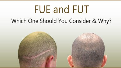 Photo of FUE and FUT: Which One Should You Consider & Why?