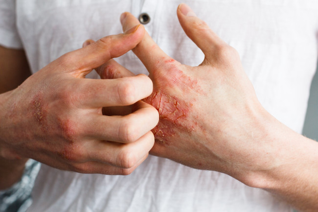 Significance of Low Dose Naltrexone in the treatment of Adult-Onset Dermatitis Herpetiformis