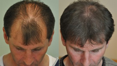 Photo of Why FUE Technique the Best Hair Transplant Treatment?