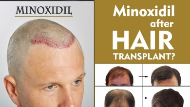Photo of Role of Minoxidil After Hair Transplant