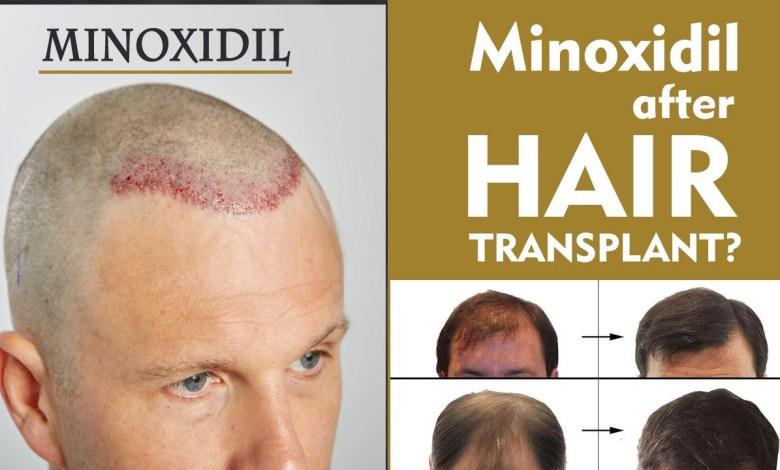 minoxidil- Role of Minoxidil After Hair Transplant