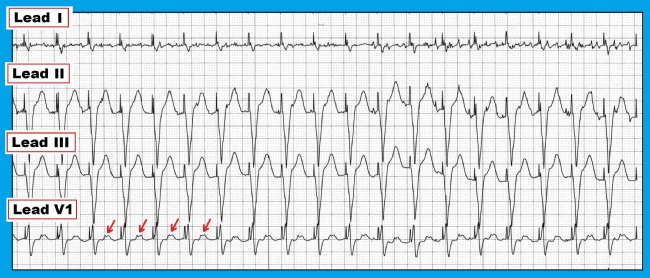 Pacemaker-mediated tachycardia. Regular ventricular pacing at 120 bpm. P waves visible (red-arrows) highlighting the retrograde P-waves. Courtesy of KG-EKG Press.
