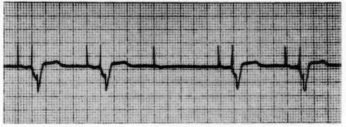 Oversensing. Paced ventricular activity is absent after the third paced atrial beat because of oversensing; ie. non-ventricular activity was sensed by the ventricular sensing channel and resulted in failure to output.