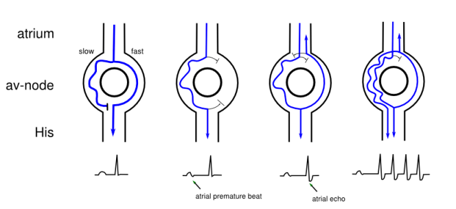 "Reentry pattern seen in Typical AVNRT. Note the ""short RP interval"". Image courtesy of ECGpedia."