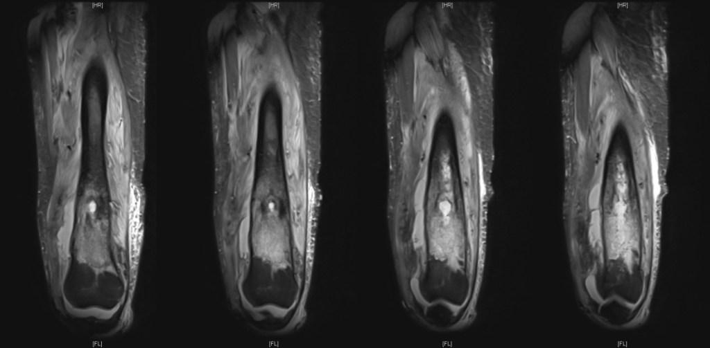Femoral Osteomyelitis MRI#2