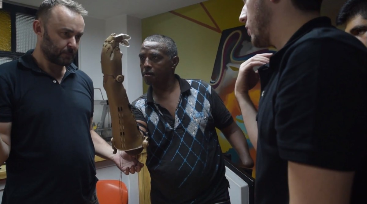 Left in the war's wake: 3D printing new limbs for Colombia's amputees