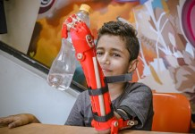 Young boy holds up a water bottle with his new prosthetic arm