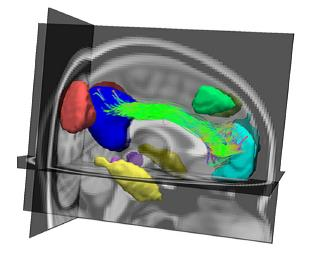 This image shows BrainCAT  linking functional MRI data with connectivity data (diffusion tensor imaging). From: Marques et al. Front. Hum. Neurosci. 7: 794