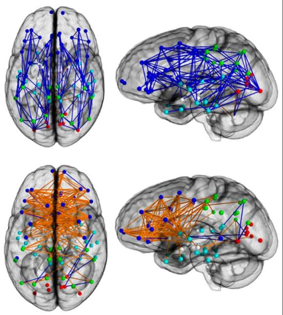 The top shows the most interconnected male regions, the bottom shows the most interconnected female regions. From: Ingalhalikar et al. PNAS (online publication before print).