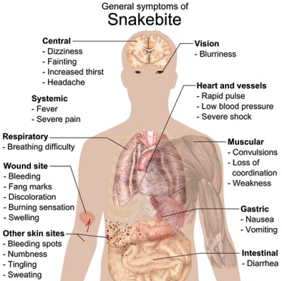 Common symptoms of any kind of snake bite poisoning (Photo credit: Wikipedia)