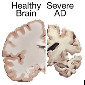 Accumulations of beta-amyloid protein is thought to be the main culprit in death of neurons in AD. Image courtesy of National Institute on Aging, via Wikimedia Commons