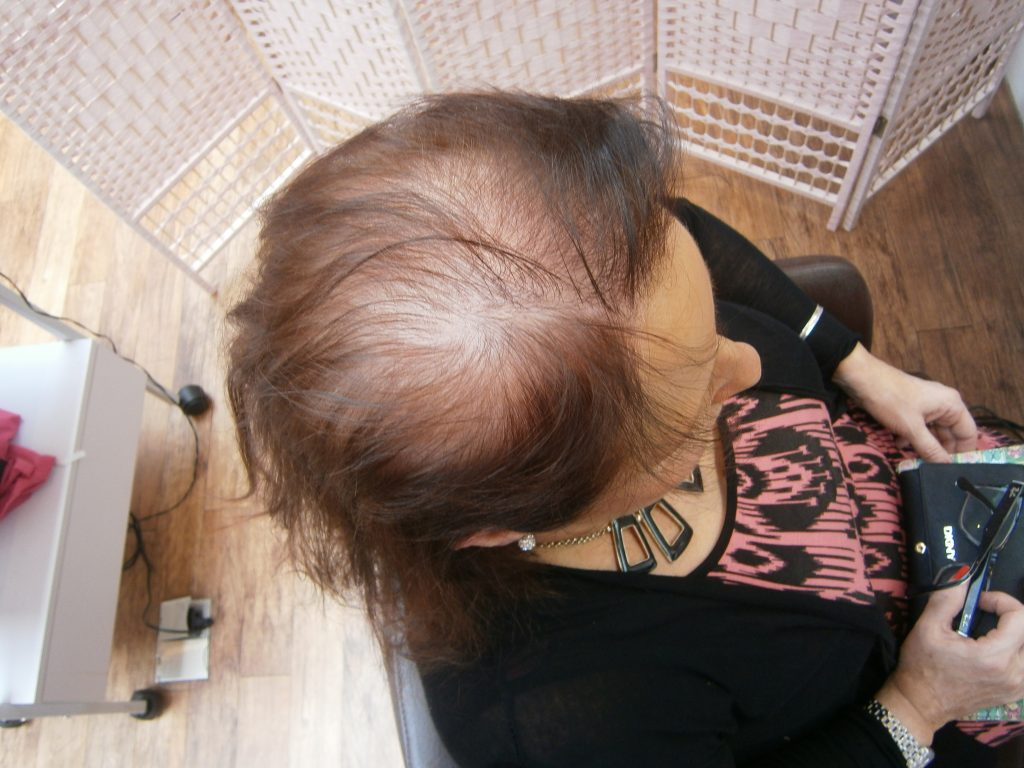 Top Tips For Dealing With Hair Loss