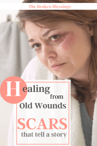 WHEN SCARS TELL A STORY