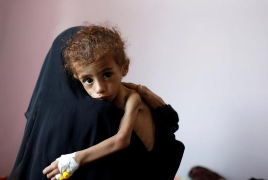Aid agencies and Catholic officials are sounding the alarm on Yemen's spiraling humanitarian crisis, calling on the combatants to end the war and make badly need assistance available.