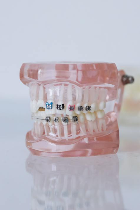 Gap in teeth - Fixing it with braces