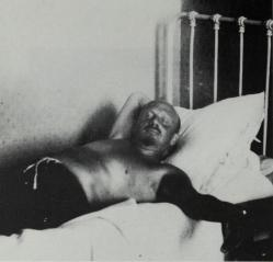 Bukharin during his illness in Crimea, 1930