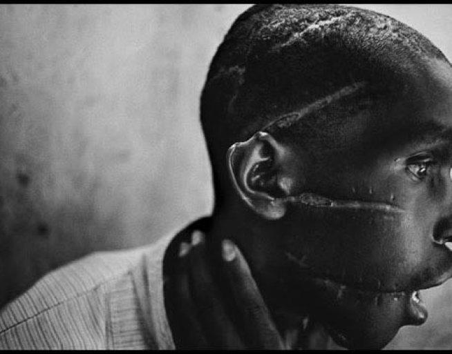 Survivor of Hutu death camp by James Nachtwey // World Press Photo