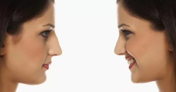 droopy nose tip fixed