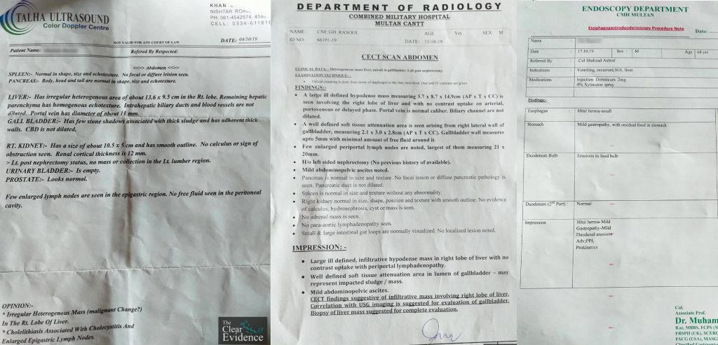 Featured Image - Request for Guidance for a Liver Cancer Patient in Multan