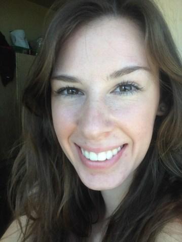 My normal face, pre-diagnosis. Aug 2014.
