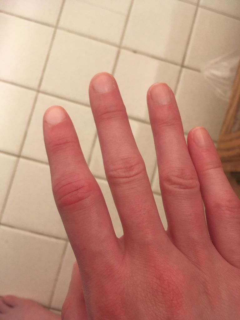 Puffy and swollen index finger