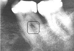 Tooth19xray
