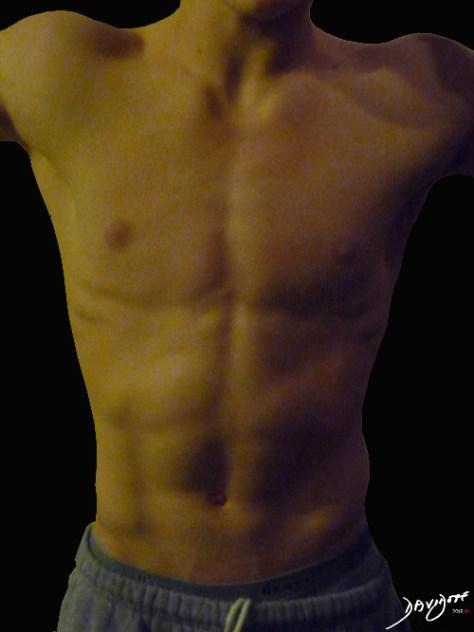 skin, thorax, abdomen, body The Common Vein, Ashley Davidoff MD