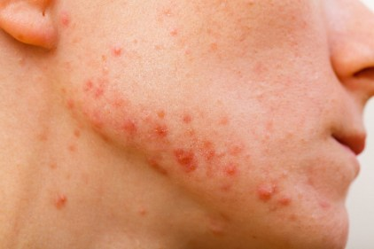Photo by the Acne and Rosacea Society of Canada.