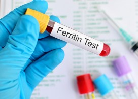 Increase Ferritin Iron Levels Hair Loss