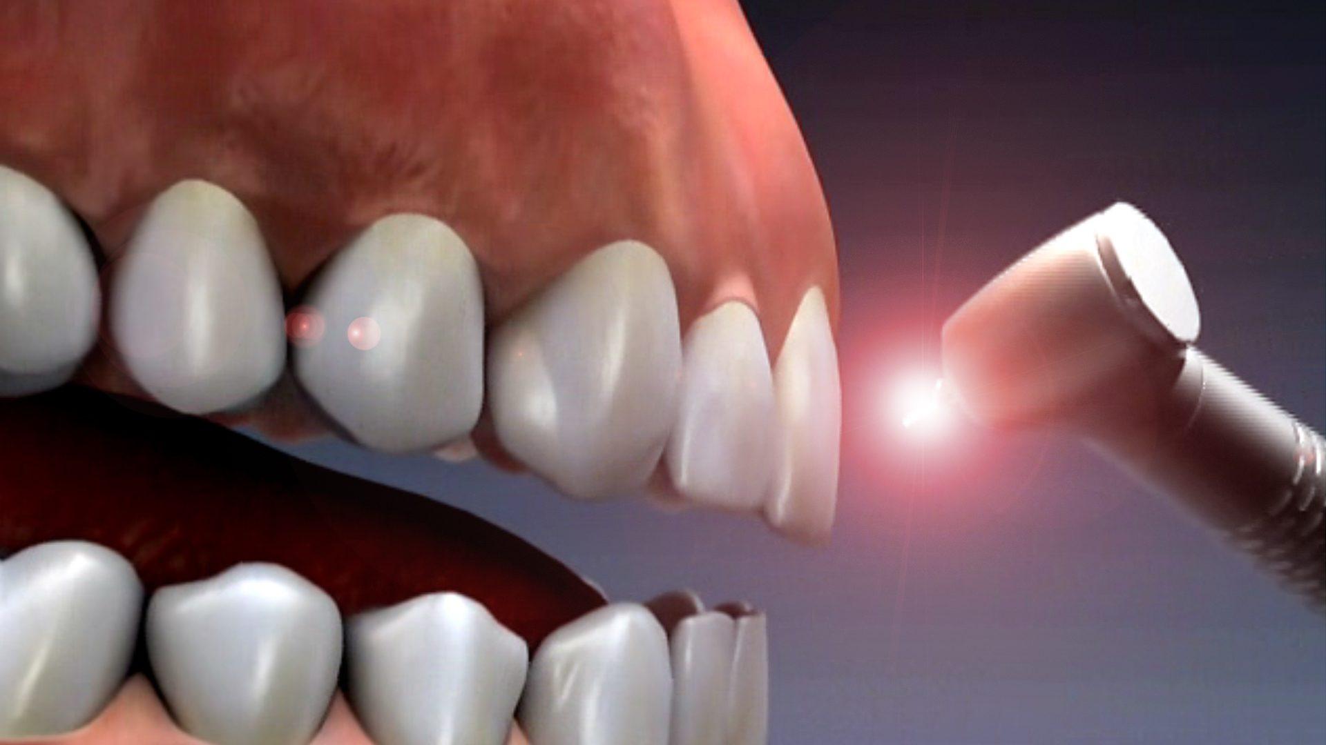 Image result for laser dentistry