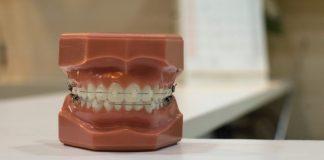 costa rica dental implants