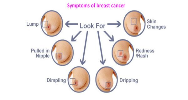 Symptoms of breast cancer.