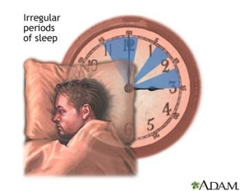 Irregular Sleep-Wake Rhythm.jpg