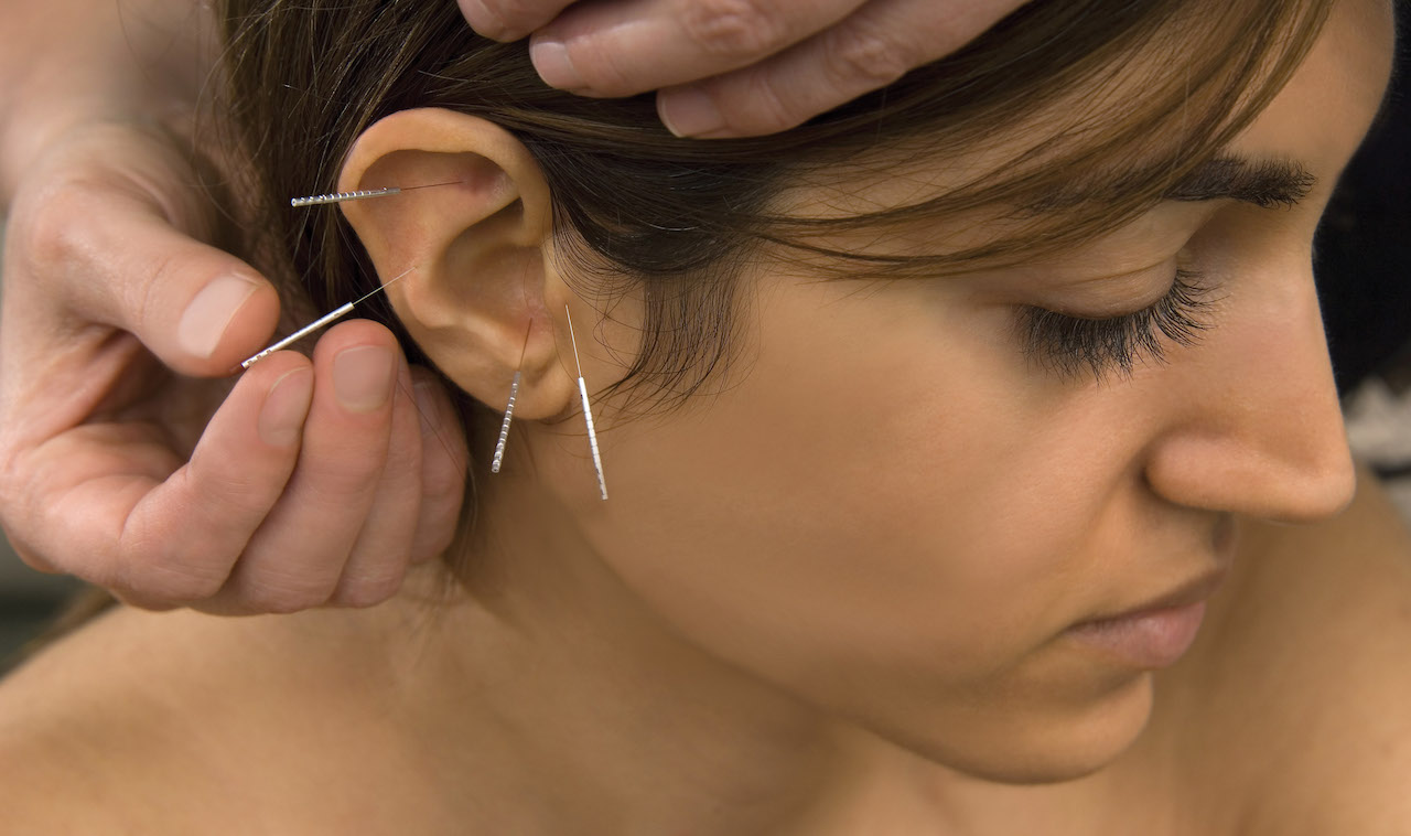 Ear acupuncture CPDG limited