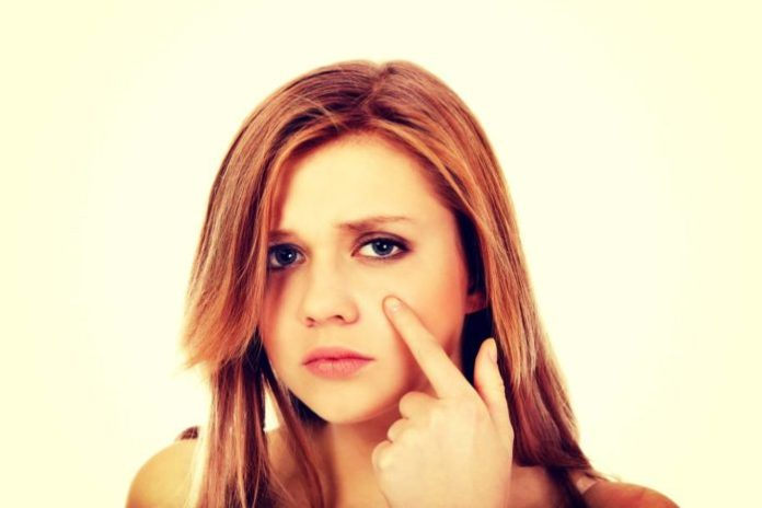 IS ACNE SCARRING YOUR CHILD'S SELF ESTEEM
