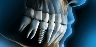 IMPORTANT_THINGS_ABOUT_DENTAL_IMPLANTS