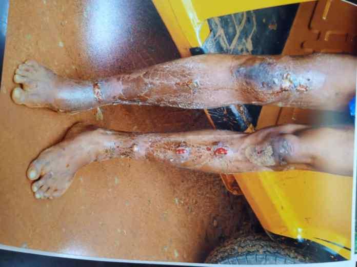 Native doctor chops off son's fingers, imprisons him for 4weeks 2