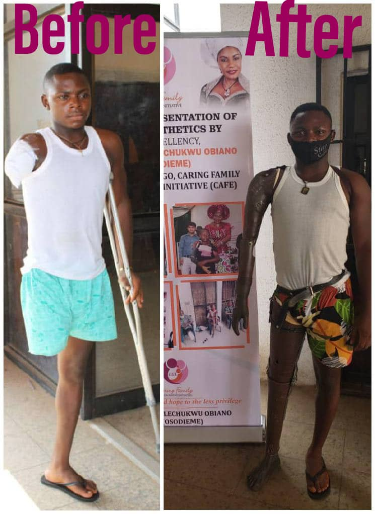 Mrs Obiano fulfills promise to accident victim, 255 others with free prosthetic Limbs, legs 3