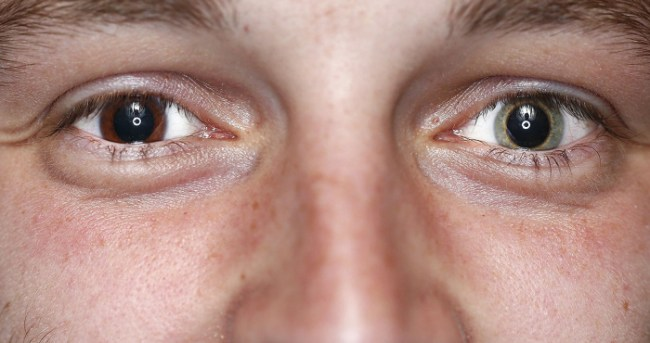Different-colored eyes seen by those who have them as distinction to embrace