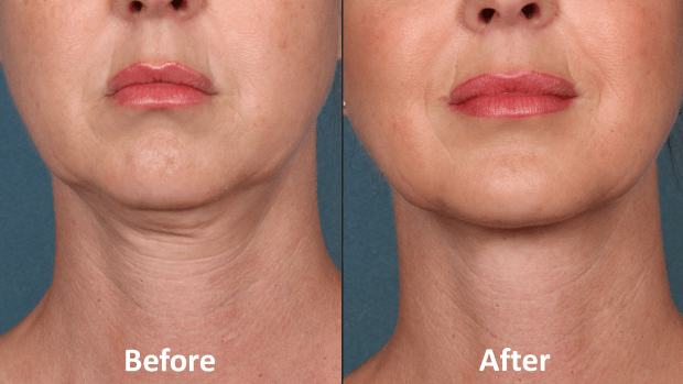 Say bye-bye to chin fat