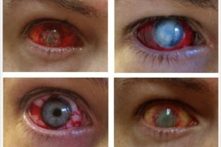 Halloween contact lenses hazards