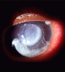 Pseudomonas eye infection