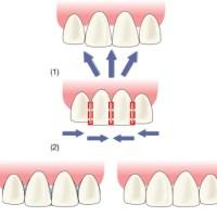 Orthodontie et Parodonte font-ils Bon Ménage?