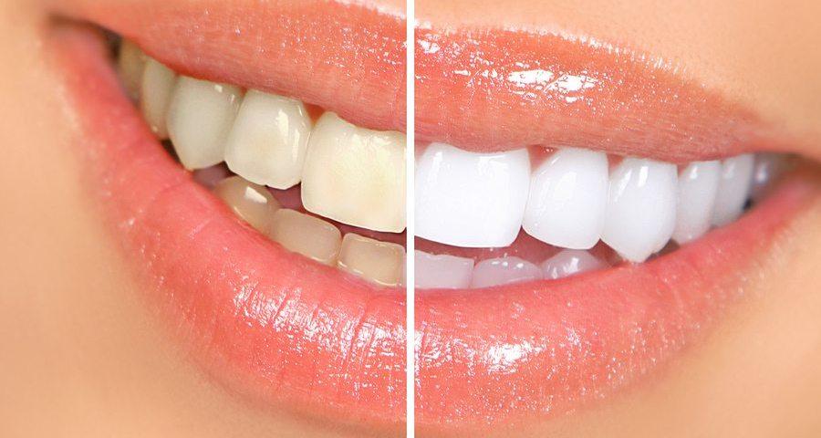 Teeth Whitening Myths The Dentist Dorridge