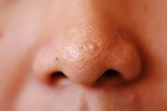 how to clean clogged pores on your nose