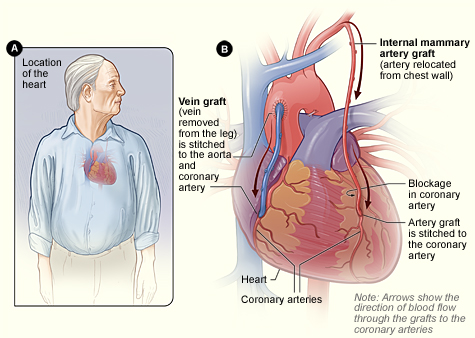 the clinical description of angina and its cure Angina pectoris is the result of myocardial ischemia caused by an imbalance  between myocardial blood supply and oxygen demand angina is.