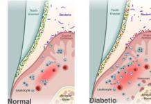 Diabetes shifts the oral microbiome
