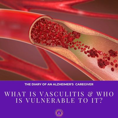 What Is Vasculitis & Who Is Vulnerable To It?