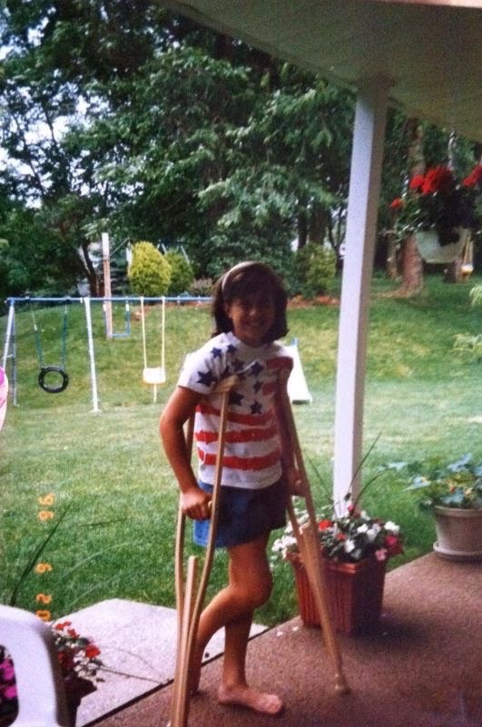 Julie as a young girl using crutches because of psoriatic arthritis.